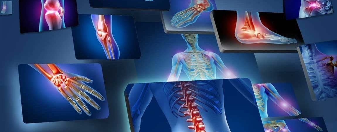 Chronotherapy Offers New Hope for Rheumatoid Arthritis