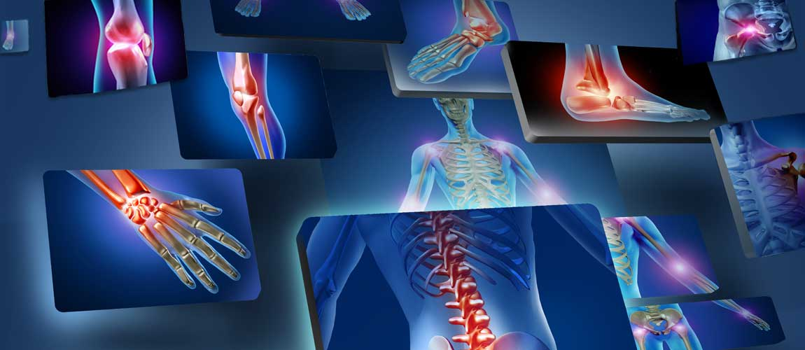 Chronotherapy Offers New Hope for Rheumatoid Arthritis 1