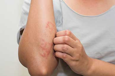 Solid Link Between Psoriasis and Vitamin D Levels Offers Hope for New Treatment Options