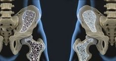 Biology Behind Osteoporosis Revealed in New Study 3