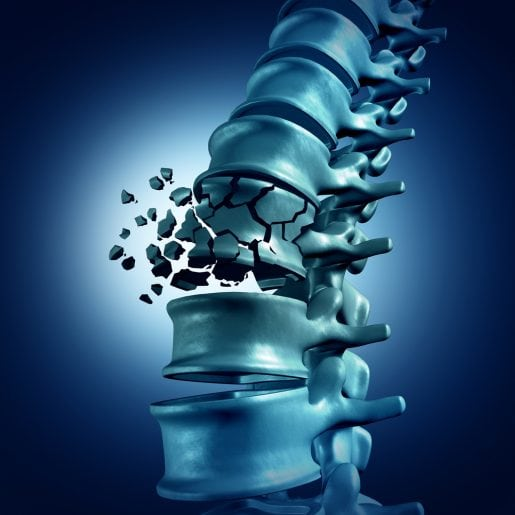 Biology Behind Osteoporosis Revealed in New Study