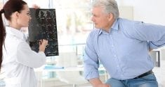 osteoporosis in men an important yet often missed disease 2