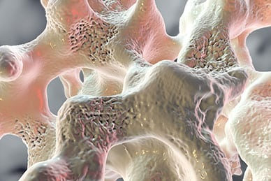 Osteoporosis in Men: An Important Yet Often Missed Disease
