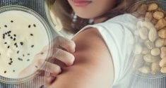 using probiotics for eczema can help heal your skin 3
