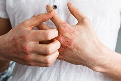 Using Probiotics for Eczema Can Help Heal Your Skin