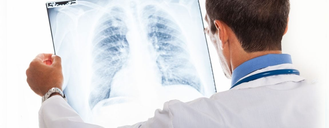 Exploring the Link Between Low Vitamin D and Lung Disease