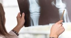 probiotics protect bone health in women 2