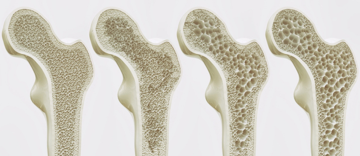Blocking Estrogen Receptors in Brain Boosts Bone Mass