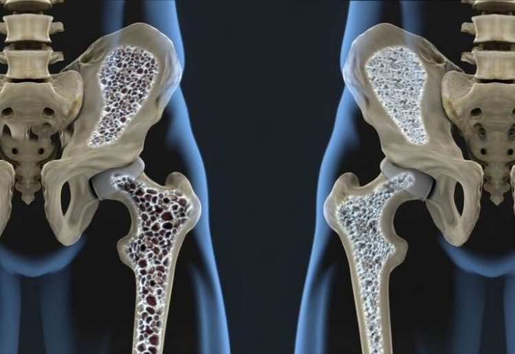 Scientists Find Link Between Osteoporosis and Quality of Social Life 1