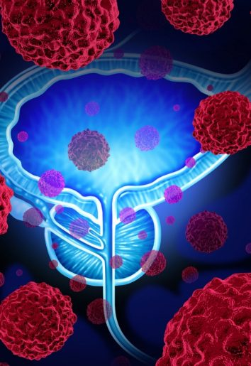 New Research Suggests Exercise Protects Against Prostate Cancer 2